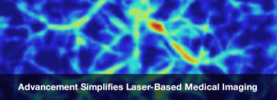 Advancement Simplifies Laser-Based Medical Imaging