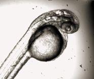 Zebrafish embryo
